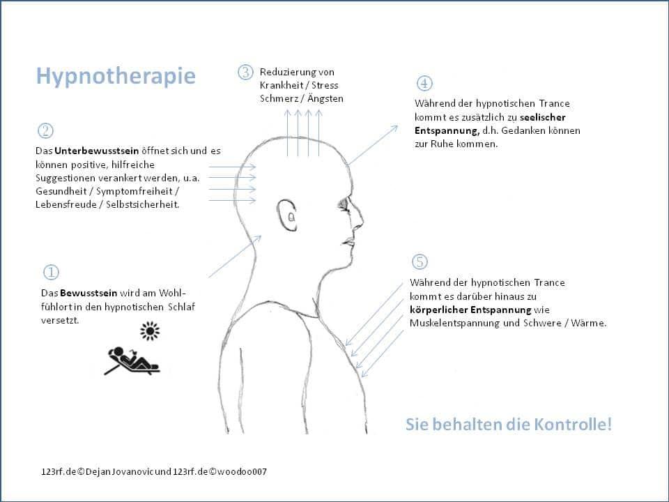 Hypnotherapie und Hypnose